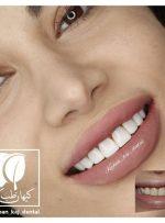 اصلاح طرح لبخند و هرآنچه باید بدانید
