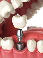 انواع ایمپلنت دندان؛ تفاوت و هزینهی آنها