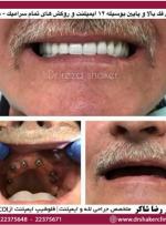 دندان مصنوعی با پایه ایمپلنت و مزایای آن