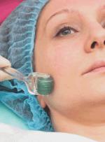 میکرونیدلینگ چیست؟ با این روش زیبایی پوست آشنا شوید