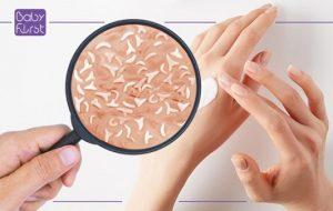 چه نوع پوستی از مزایای پری بیوتیکها بهره میبرد؟