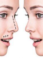 جراحی زیبایی بینی- دکتر مهرداد مقیمی