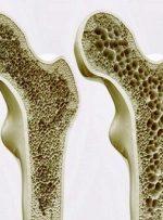 چاپ سه بعدی استخوان در بدن انسان؛ ایده محقق ایرانی در استرالیا
