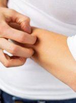 آلرژی مرکبات چیست و چه علائمی دارد؟