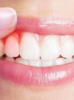 اطلاعات علمی جدید و مفید درباره جراحی لثه و کاشت دندان