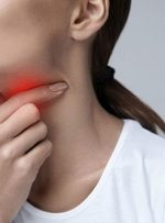 تورم غدد گردن؛ علائم، علتها و راهکارها