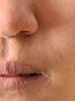 روشهای درمان خشکی پوست در پاییز