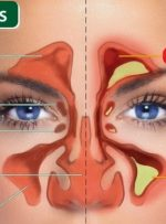 راهکارهایی برای درمان «سینوزیت» – خبرآنلاین