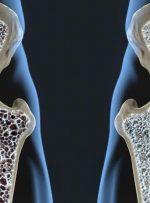 آمار تکاندهنده از پوکی استخوان در زنان ایرانی