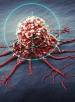 درمان سرطان پستان با قاتلان طبیعی