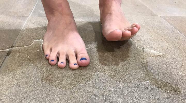 تعریق بیش از حد پاها از علائم هایپرهیدروزیس